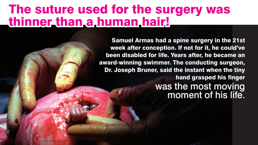 The suture used for the surgery was thinner than a human hair!