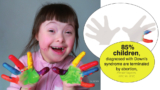 85% children, diagnosed with Down's syndrome are terminated by abortion